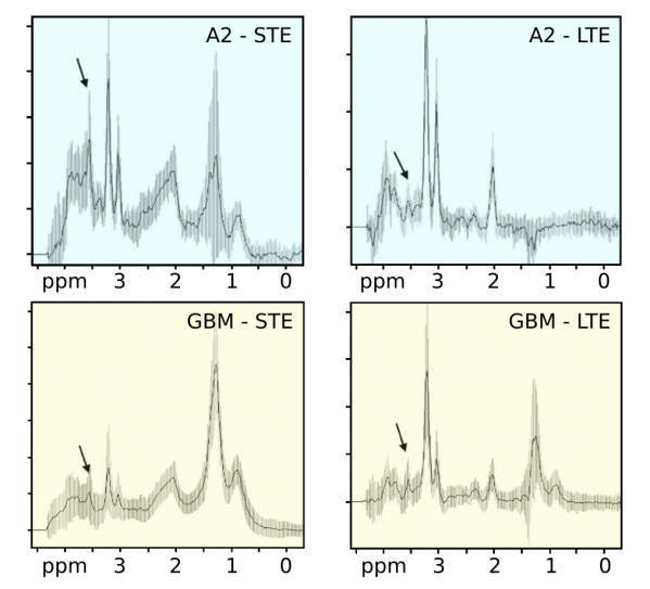 Low-grade astrocytomas (top row, A2) could be distinguished from glioblastomas (bottom row, GBM) by using the relative visibility of myo-inositol and glycine at short and long echo times (LTE vs STE) NMR spectra.