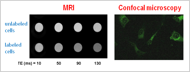 Novel MRI contrast agents: peptide-SPION conjugates